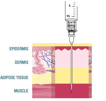 Gluteal intramuscular injection of VIVITROL®
